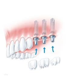 腾飞义齿 种植体修复